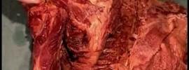 Human Anatomy Dissection Videos